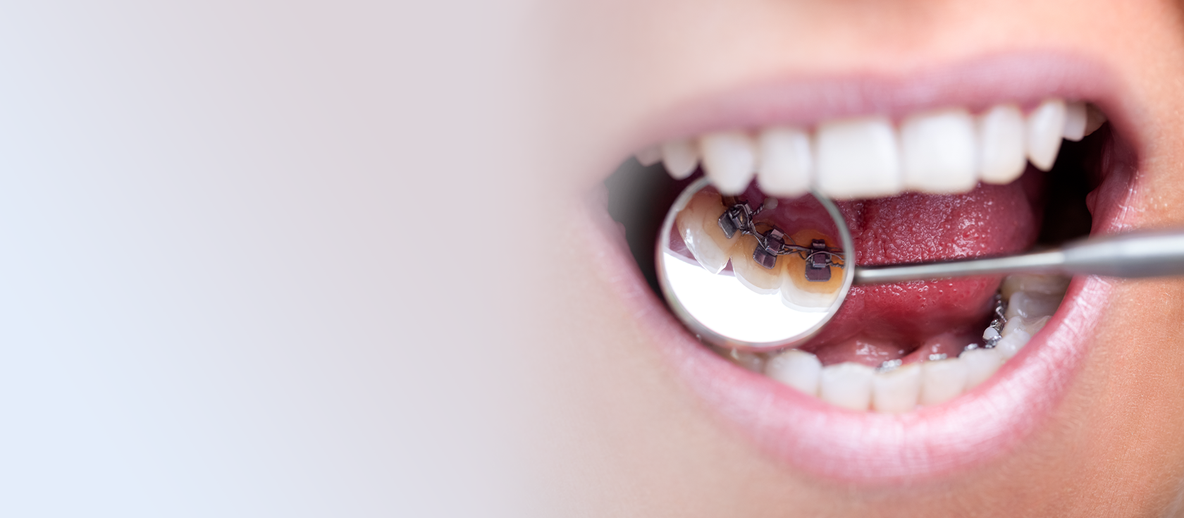 ortodoncia lingüal