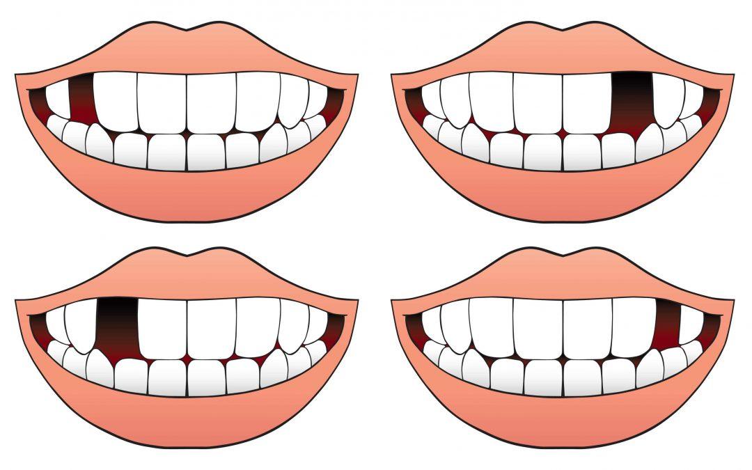dientes ausentes