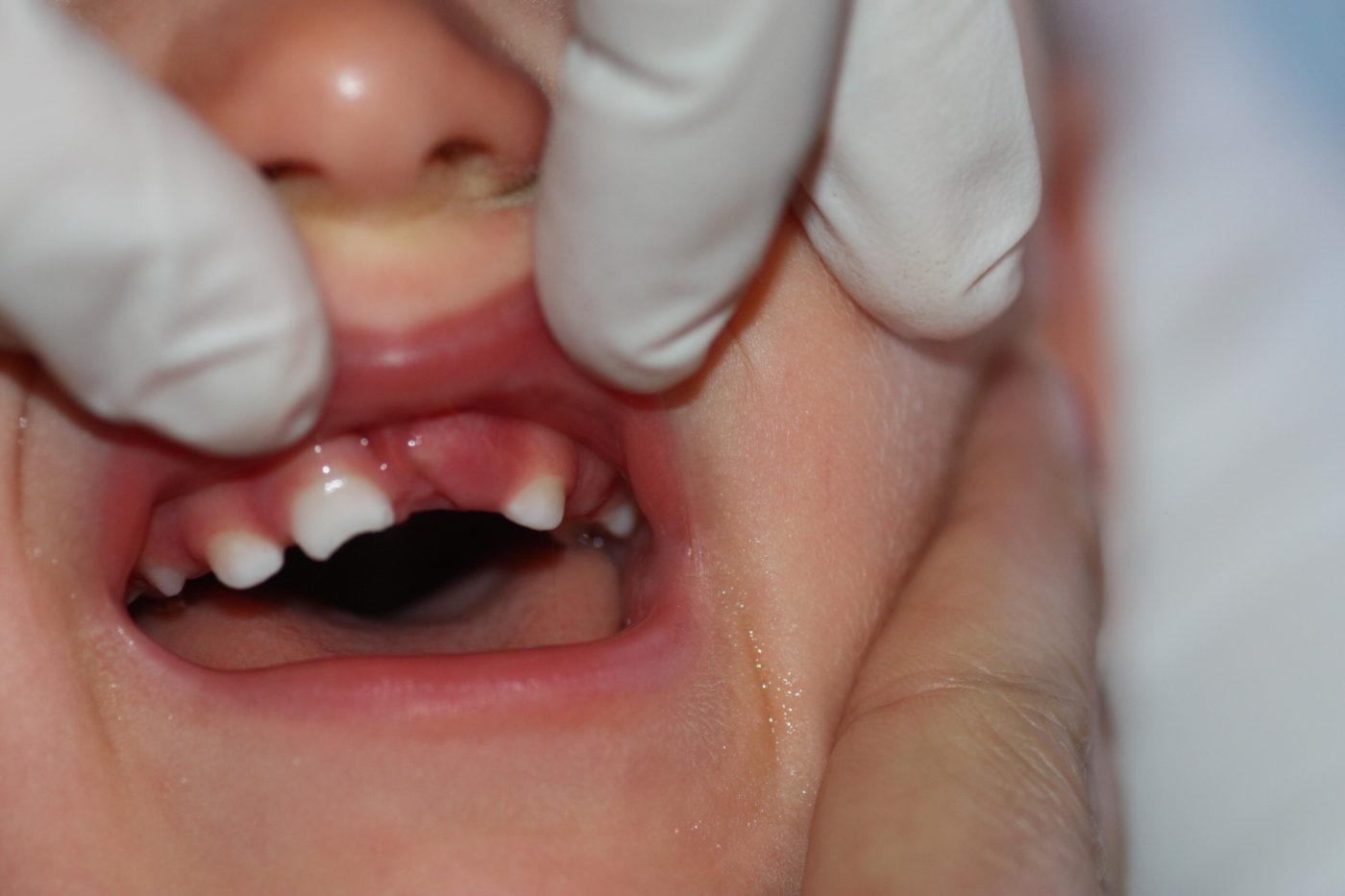 Fractura dentaria secundaria a traumatismo: no se aprecia la corona del diente