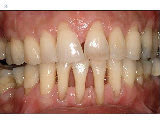 Dientes con periodontitis