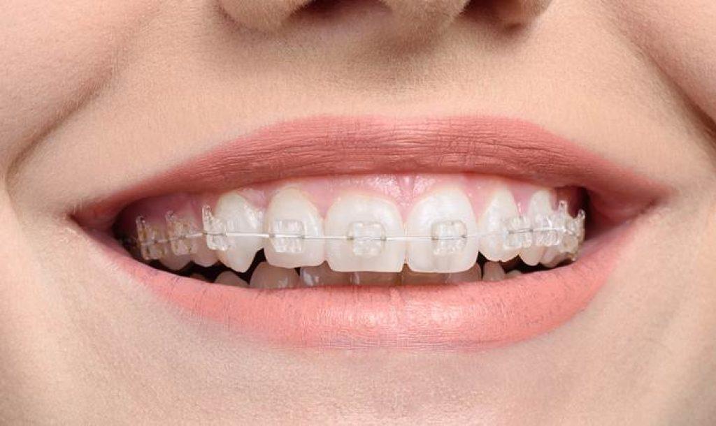 Brackets blancos en una sonrisa
