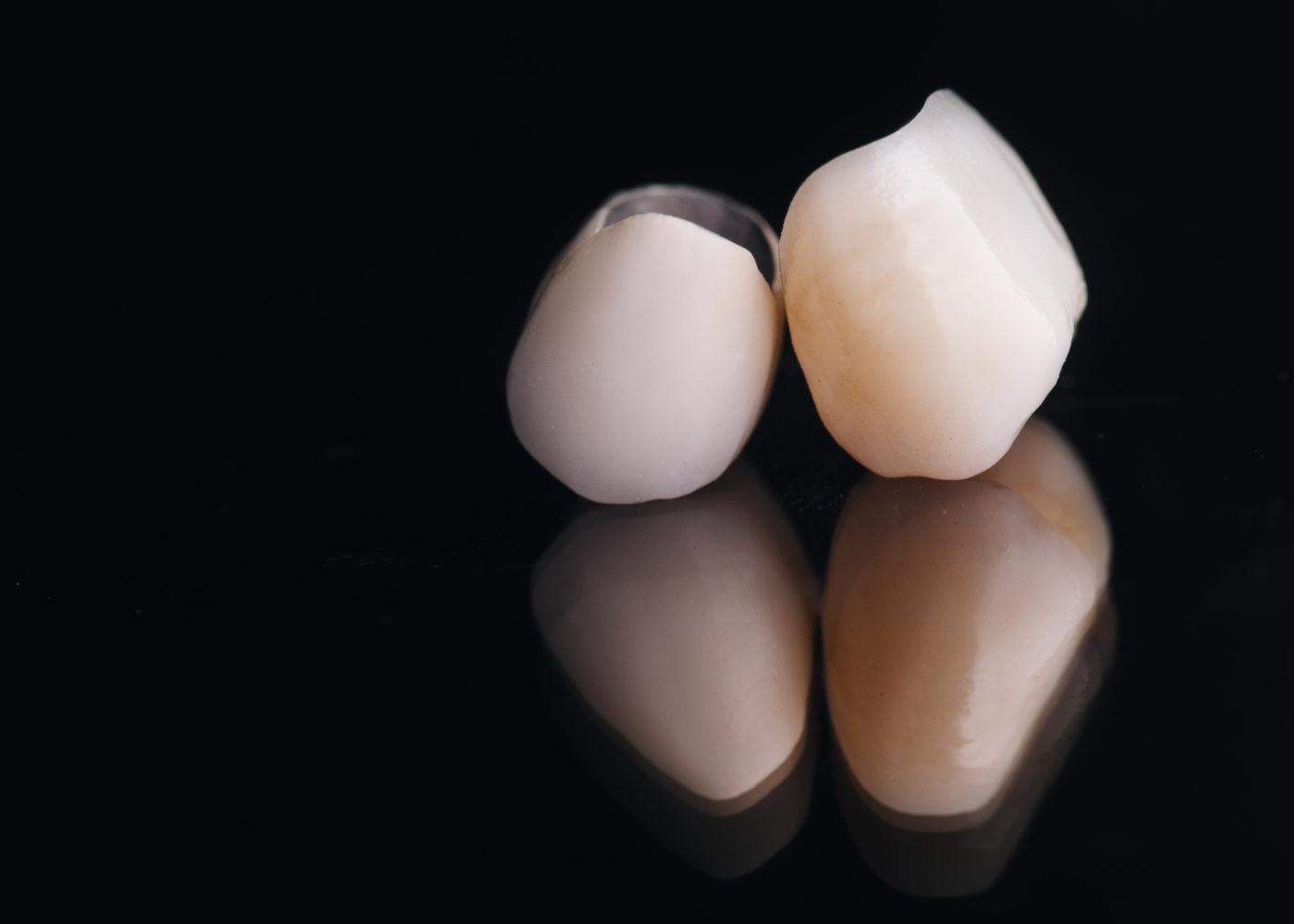 Fundas para dientes