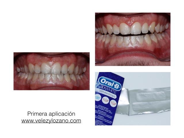 1. Oral-B-Murcia-Dentista-Blanqueamiento-3DWhitestrips