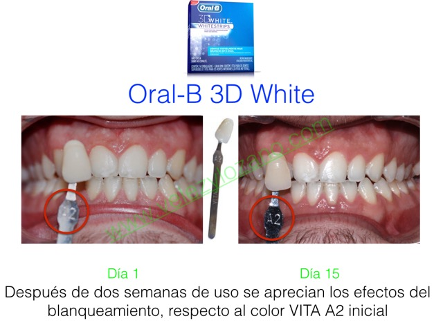 2. Before&After 3DWhitestrips-Murcia-Dentista-Clinica-Blanqueamiento-Dental