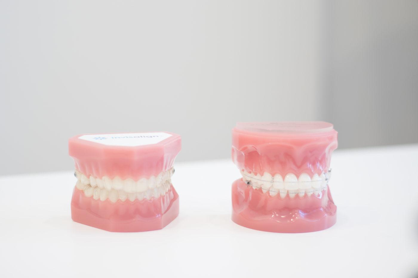 Fantomas con distintas ortodoncias