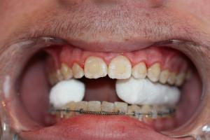 Una vez retirados, lo habitual es que queden restos del cemento empleado para pegarlos a los dientes durante el tratamiento, que debemos eliminar
