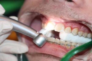 La retirada se hace mediante un instrumento de alta velocidad, con una 'fresa' más resistente que el cemento pero menos que el diente, de forma que estamos seguros de que nunca podremos quitar esmalte, manteniendo intacto el esmalte del paciente