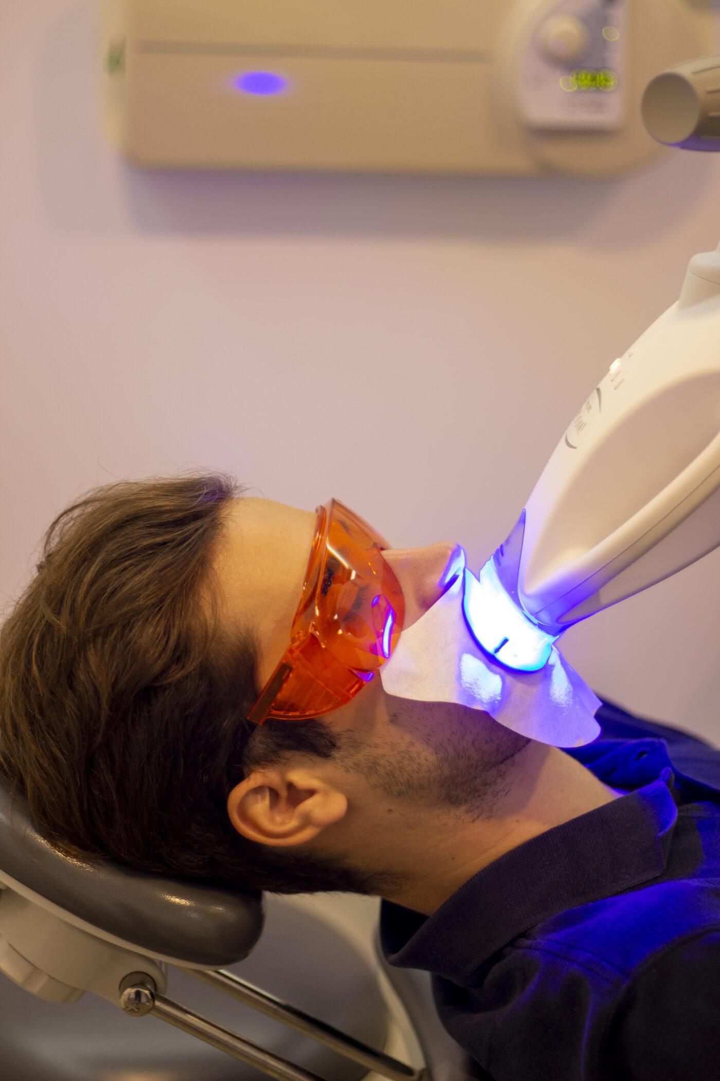 blanqueamiento-dental-proceso